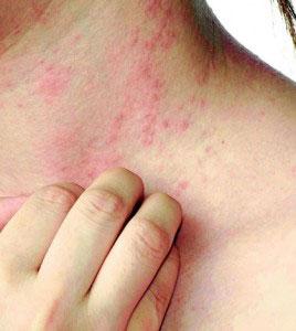 wol-allergie-reincarnatietherapie.jpg