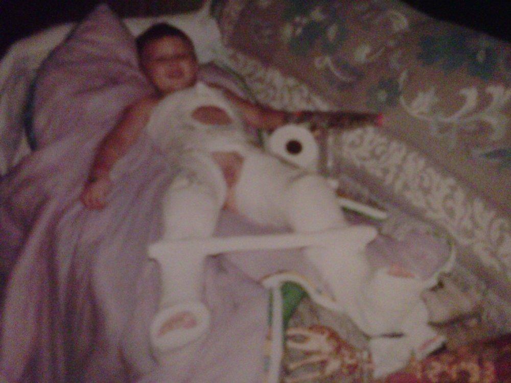 Broke my goddamn femur, 1993