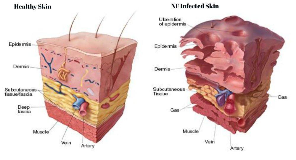 a study on necrotizing fasciitis or flesh eating disease
