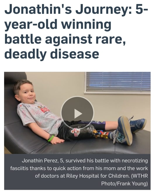 Jonathin Perez was just four years old when Necrotizing Fasciitis took his leg, and nearly his life. But he's not letting that slow him down.    https://www.wthr.com/article/jonathins-journey-5-year-old-winning-battle-against-rare-deadly-disease