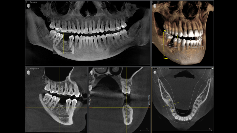 CBCT.png