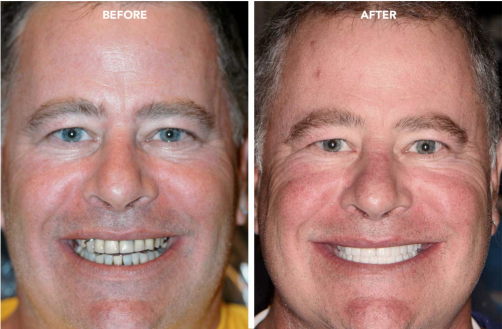 The Benefits of Immediate Tooth Replacement - - Patients are never without teeth- Requires only one surgery- Shorter treatment time- Helps maintain gum tissue shape and volume- Speaking and eating are naturally easier throughout your healing phase (patients do not have to wear unstable temporary dentures or removable devices)