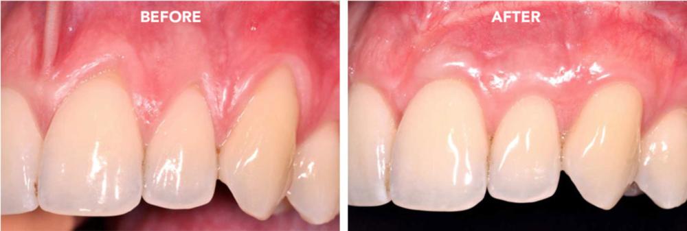 Cosmetic Gum Procedures Start Smiling Chicago