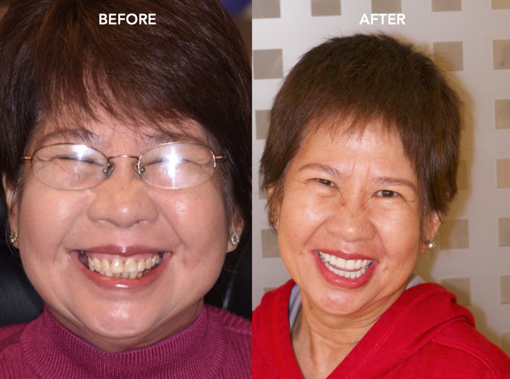 All-On-4 Dental Implants Start Smiling Chicago