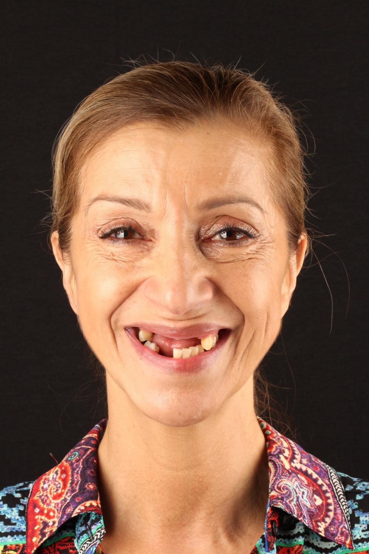 Start Smiling Dental Implant Centers Art of Transformation