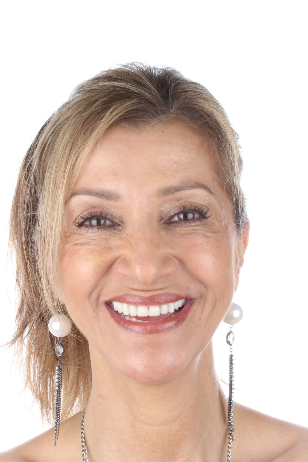Start Smiling Dental Implant Centers Art of Transformation
