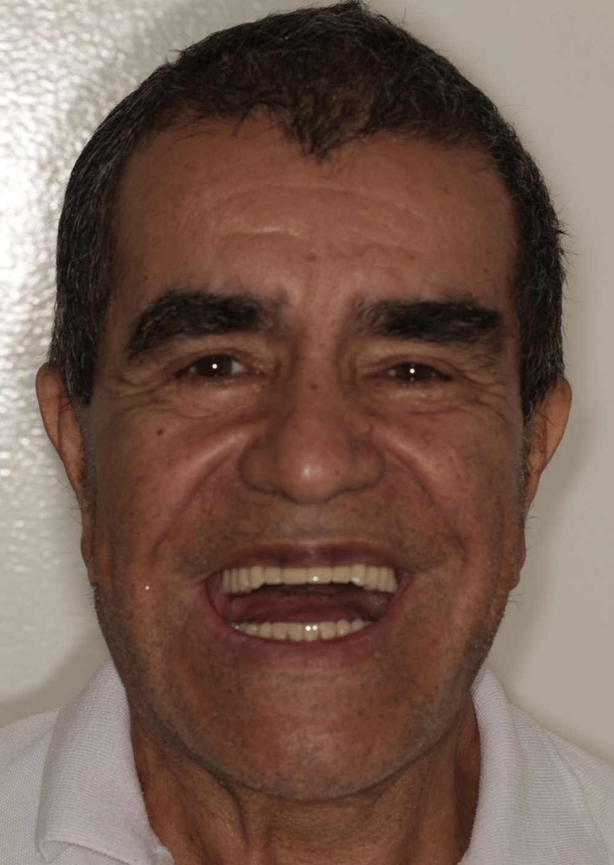 Start Smiling Dental Implant Centers Transformation