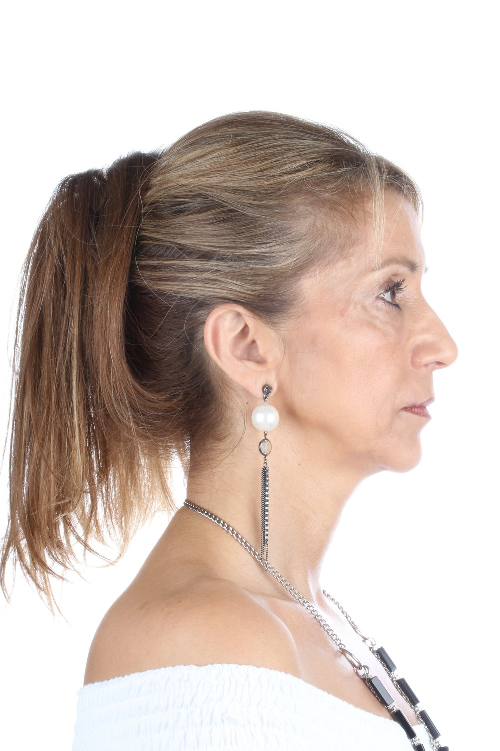 Case Complete: All-On-4® Lateral Profile