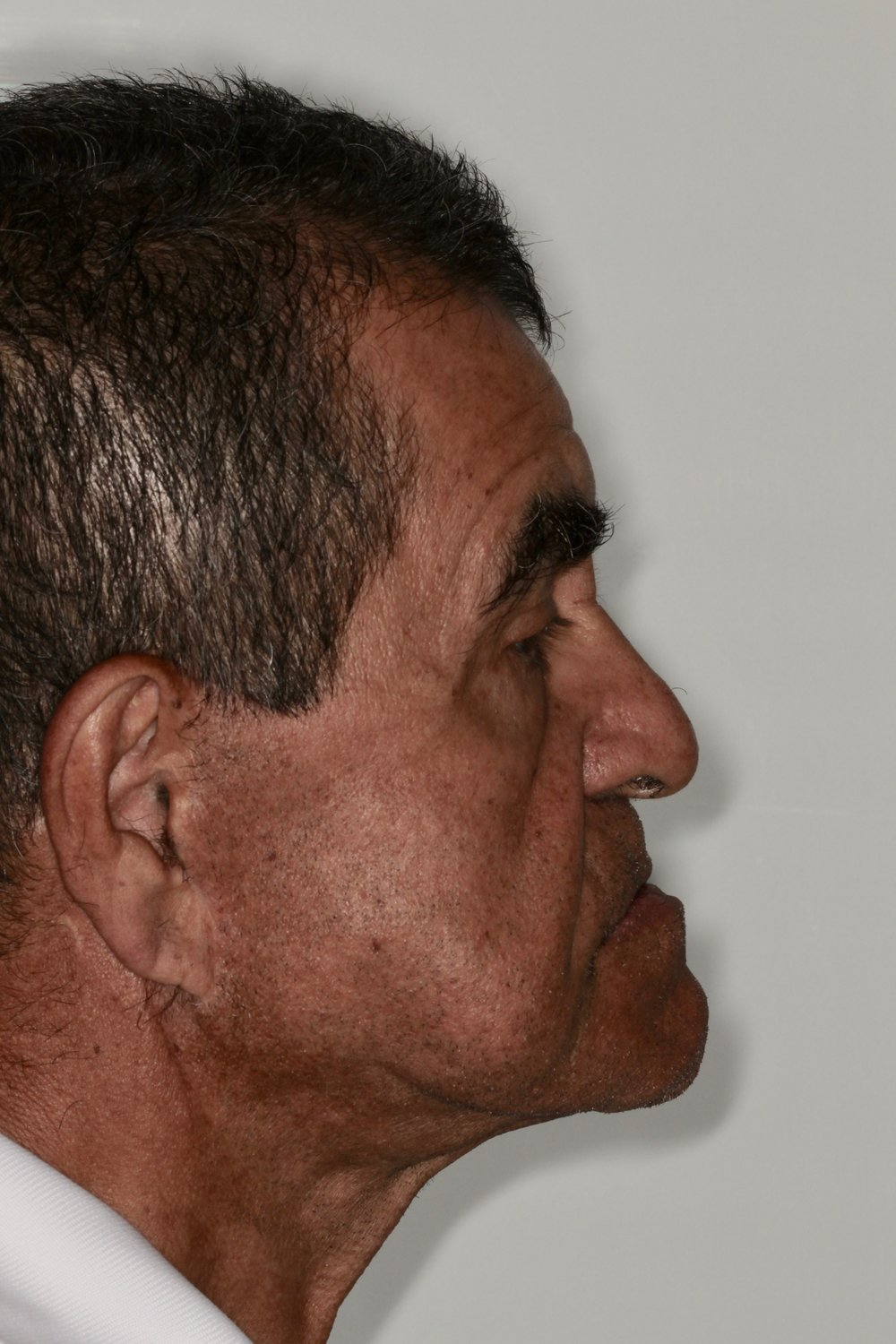Pre-Op Lateral Profile
