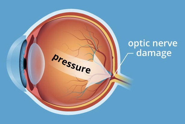 Eye pressure causes damage to optic nerve
