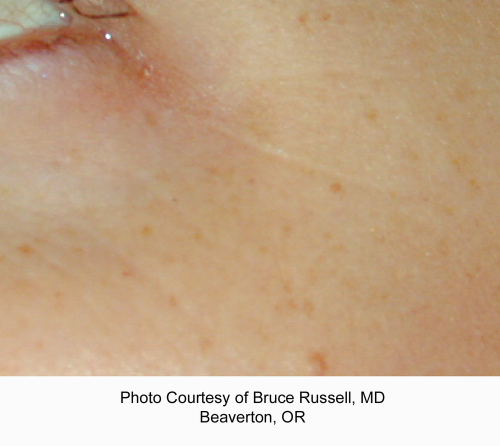 russell periocular after copy.jpg