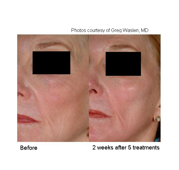 By gently heating the upper dermis well below your skin's surface, Laser Genesis improves the appearance of wrinkles through collagen stimulation. Additional heat is generated in dilated capillaries to reduce redness. -