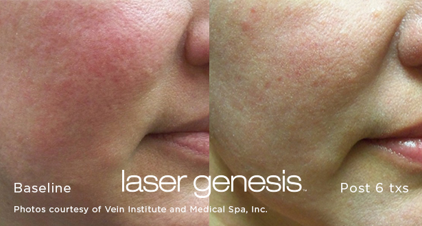 You will not need gel, anesthetic cream or ice prior to treatment. Before the actual Laser Genesis treatment, you will be asked to remove your make-up or moisturizers and, in some cases, you may be asked to shave the area to be treated. Your physician will review and assist with all pre-treatment requirements. -
