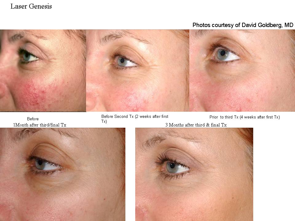 Over the course of four to five treatments, Laser Genesis can help restore the skin's youthful glow and appearance. The individual treatment results are subtle, but the overall effect of multiple treatments can be quite dramatic. - Safely and gently treat diffuse rednessFades acne scarringContinuously stimulates new collagen productionReduces the appearance of fine linesNaturally promotes a healthy look