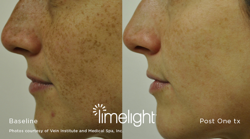 The LimeLight Facial is a new, non-invasive approach to skin revitalization using Cutera's LimeLight. The procedure offers the advantage of improving skin tone and surface imperfections associated with aging and photodamage. -