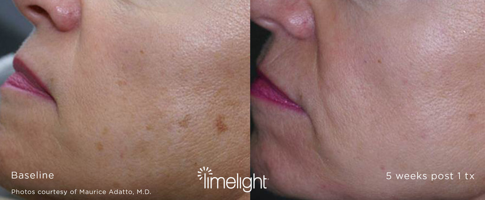By selecting Program A, B or C, your practitioner can customize your LimeLight Facial to your skin type and selectively treat the brown and/or red pigmented areas on your skin. It's the heating of the pigmented brown or red cells that causes the therapeutic effect. -