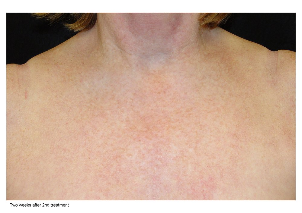 The LimeLight Facial is ideal for any part of your face, neck and décolleté with skin redness, telangiectasia (tiny veins) or brown spots. Light (low contrast) brown spots, which were previously difficult to resolve, respond very well to treatment. -
