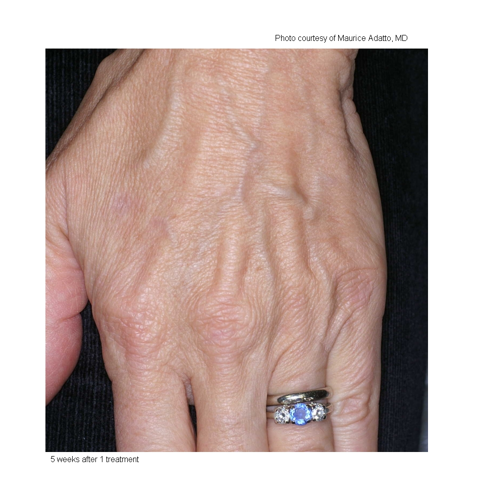 When the pulse of light is delivered, patients will experience a mild pinching or stinging sensation. Gel is recommended to cool the skin before vascular treatments. Anesthesia or pain medicine is typically not required. -