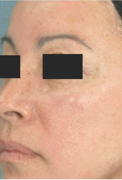 One to three treatments are usually sufficient to see results. Additional treatments may be recommended, especially for excessively sun-damaged skin.  -