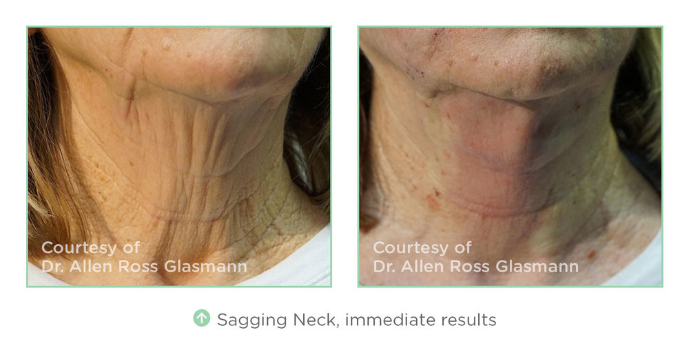 nt-before-after-sagging-neck.jpg