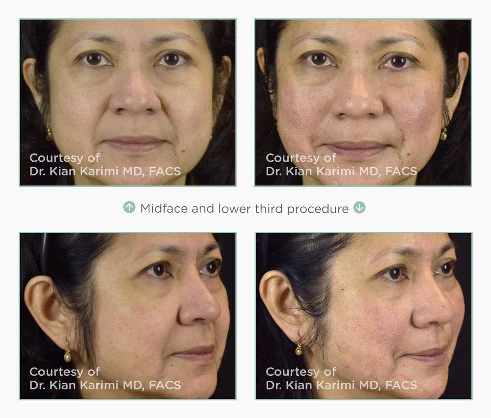 novathreads-midface-lower-face.jpg