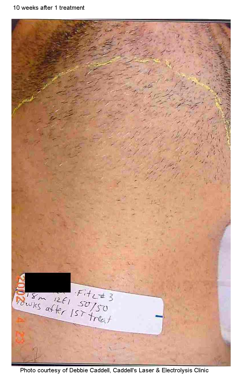 Electrolysis is a tedious, invasive, and painful process that involves inserting a needle into each individual hair follicle and delivering an electrical charge to them one at a time. Electrolysis often requires years of treatments at regular intervals. By delivering light energy to hundredsof hair follicles at a time, ProWave effectively treats an area in just seconds that would take over an hour with electrolysis. -