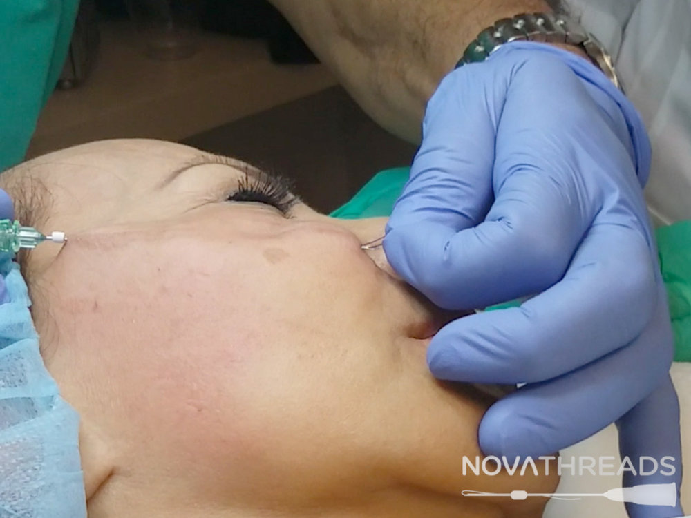 """Nova Lyftis utilized to produce a more dramatic and immediate result. The PDO sutures have """"barbs"""" or """"cogs"""", which provide a grip underneath the skin. Sutures are inserted the same way as the Nova Mesh, except they can be pulled in 1 or 2 directions, creating an instant skin repositioning. Just like the Nova Mesh, the skin will then build new collagen which will secure the lift. -"""
