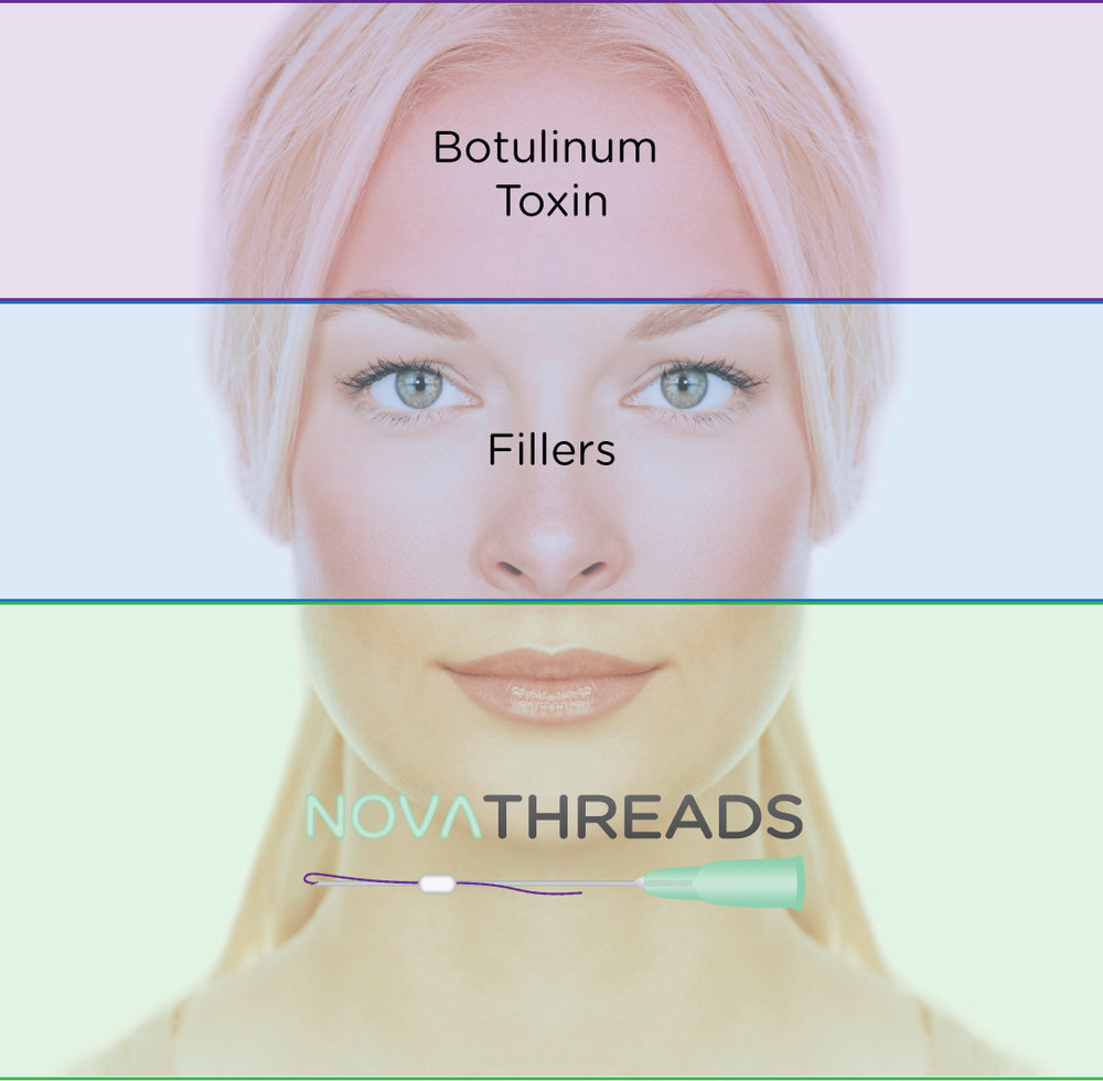 Although Nova Threadscan be inserted almost anywhere, one area where they are especially effective is the neck and jawline. The lower third of the face is challenging to treat effectively with botulinum toxin or injectable fillers, which are most effective in the upper and middle third of the face, respectively. -