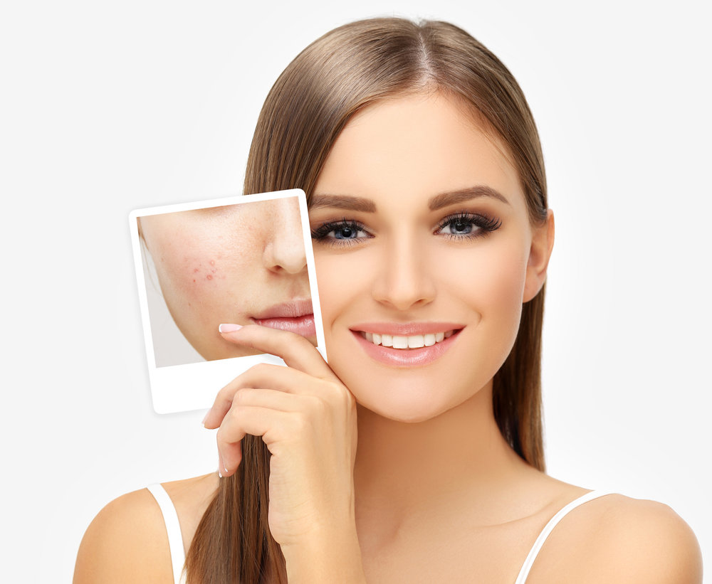 Acne, also known as acne vulgaris, is a long-term skin diseasethat occurs when hair folliclesare clogged with oil from the skin.It is characterized by blackheads or whiteheads,pimples, oily skin, and possible scarring.It primarily affects areas of the skin with a relatively high number of oil glands, including the face, upper part of the chest, and back. -