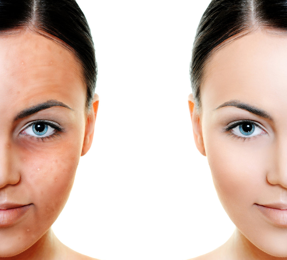 Pigmentation means coloring. Skin pigmentation disorders affect the color of your skin. Your skin gets its color from a pigment called melanin. Special cells in the skin make melanin. When these cells become damaged or unhealthy, it affects melanin production. Some pigmentation disorders affect just patches of skin. Others affect your entire body. -