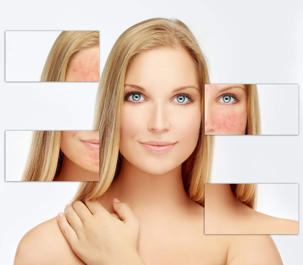 While the cause of rosacea is unknown and there is no cure, medical treatment is available that can help manage the signs and symptoms of this pervasive condition. Symptoms include:  -  Redness on the cheeks, nose, chin or forehead;Small visible blood vessels on the face;Bumps or pimples on the face; orWatery or irritated eyes.