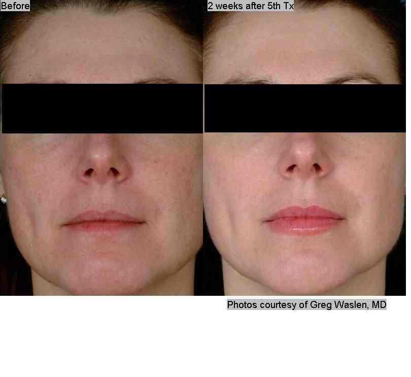 2D_Face_Waslen_04_B-5A_2wks_front.jpg