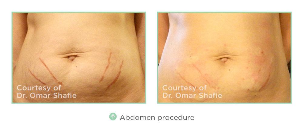 abdomen-procedure.jpg