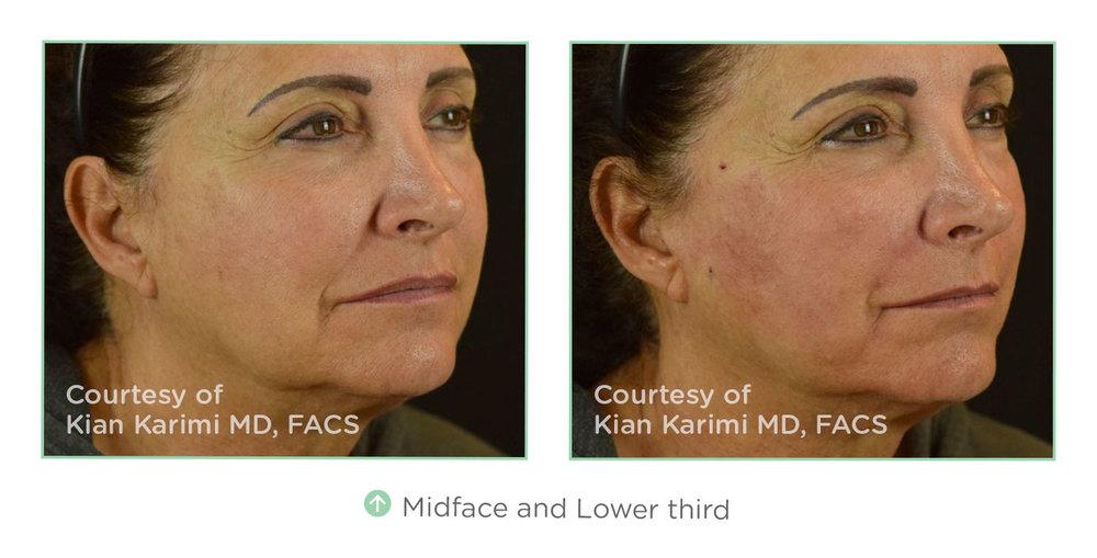 lower-face-2.jpg