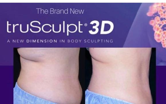 truSculpt 3D Body Sculpting
