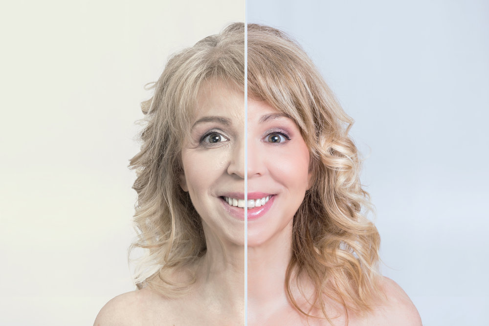 Skin rejuvenation and anti-aging treatment options abound with the latest innovations in injectable, laser, light and other energy-based procedures. Technological advancements allow you to turn back the clock on wrinkles, age spots and skin laxity without undergoing the knife or general anaesthesia. -