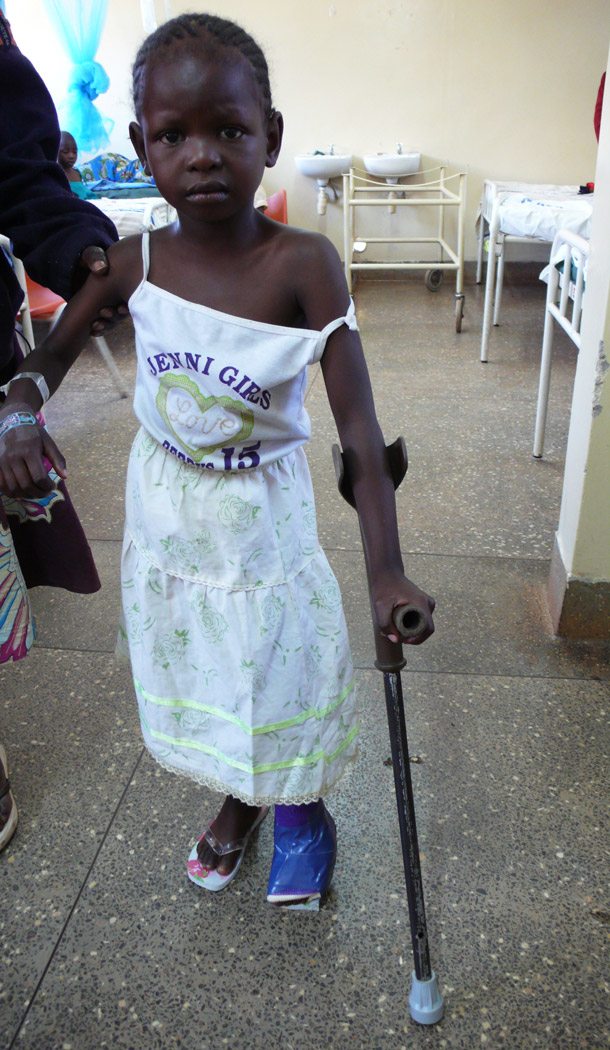 Young girl clubfoot repair after