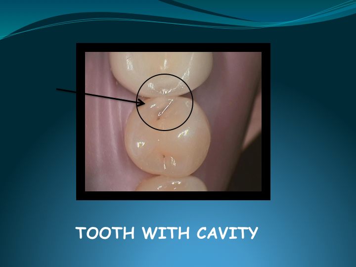 Cerec Inlay Procedure.002.jpg