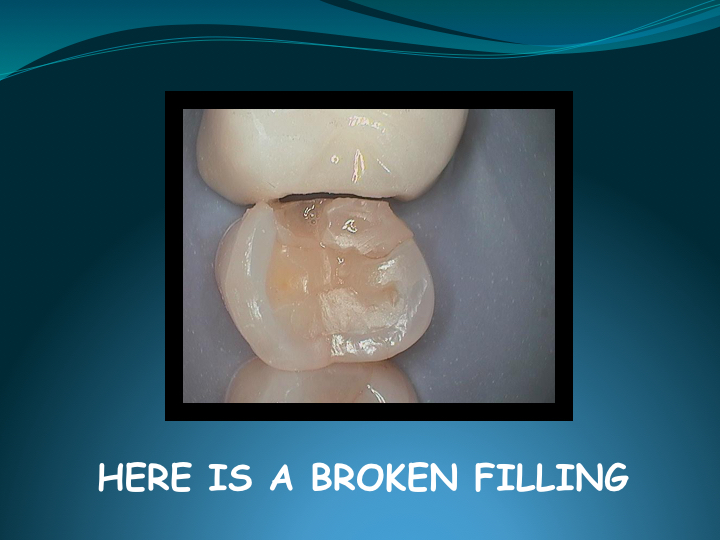 Cerec Inlay Procedure.005.jpg