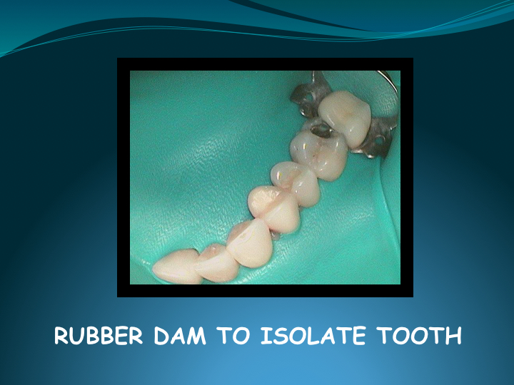 Cerec Inlay Procedure.006.jpg