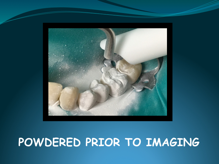 Cerec Inlay Procedure.008.jpg