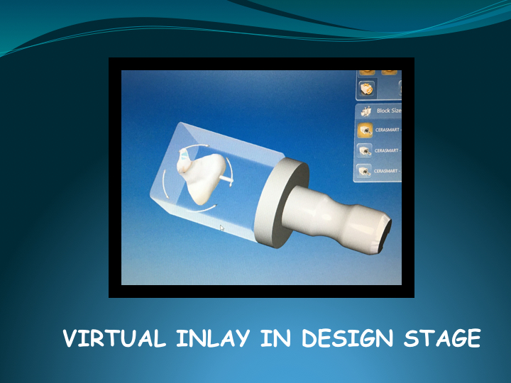 Cerec Inlay Procedure.015.jpg