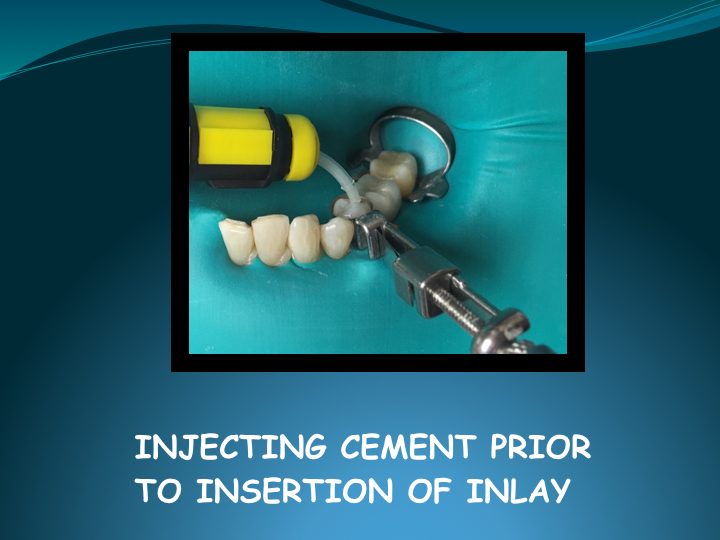 Cerec Inlay Procedure.018.jpg