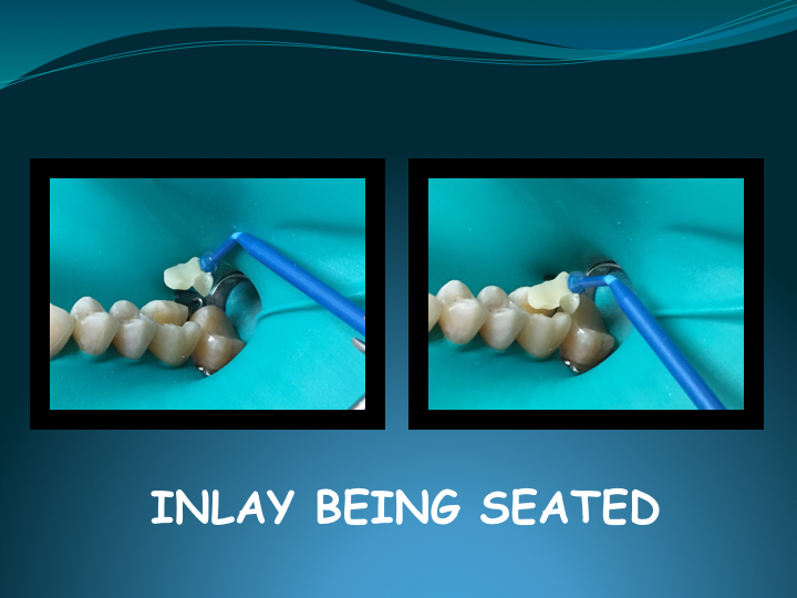 Cerec Inlay Procedure.019.jpg