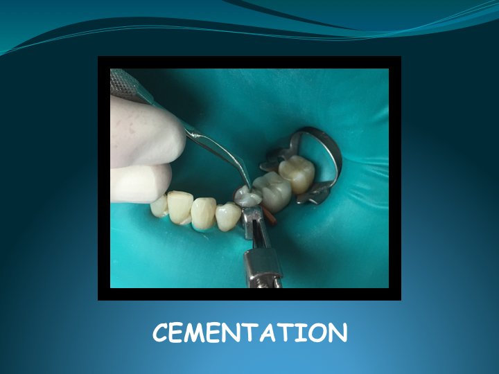 Cerec Inlay Procedure.020.jpg