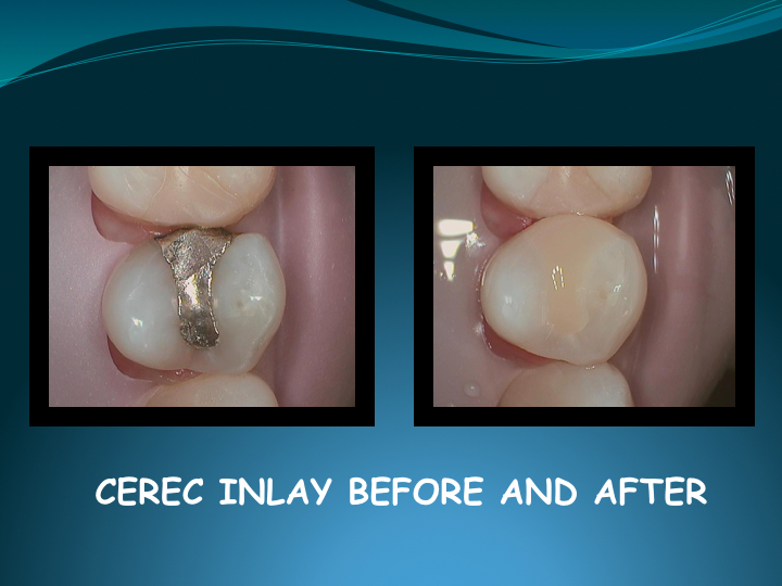 Cerec Inlay Procedure.025.jpg