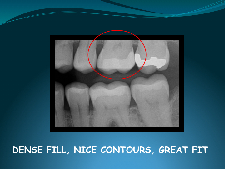 Cerec Inlay Procedure.027.jpg