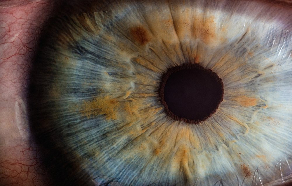 Iridology consultation$120includes photo images and notes -