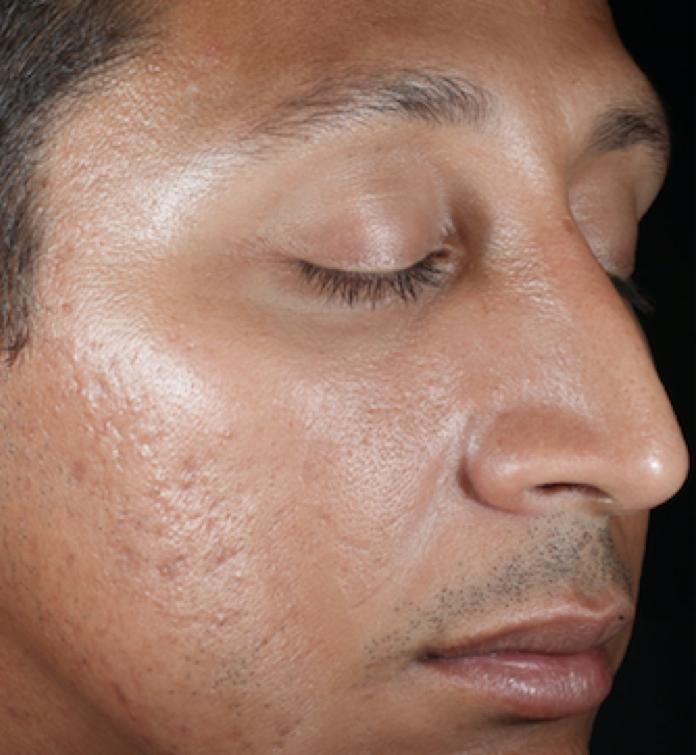 SkinMedica Peel After 2.png