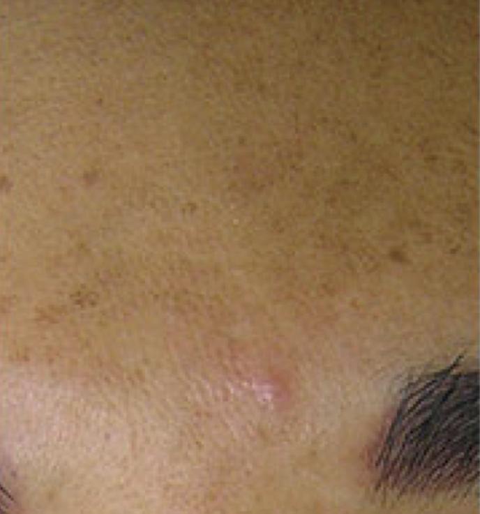HydraFacial Before 3.png